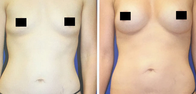 Patient 4 - Fat Transfer - Breasts