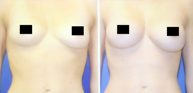 Patient 3 - Fat Transfer - Breasts
