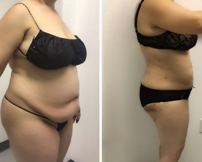 Liposuction - Stomach/Sides