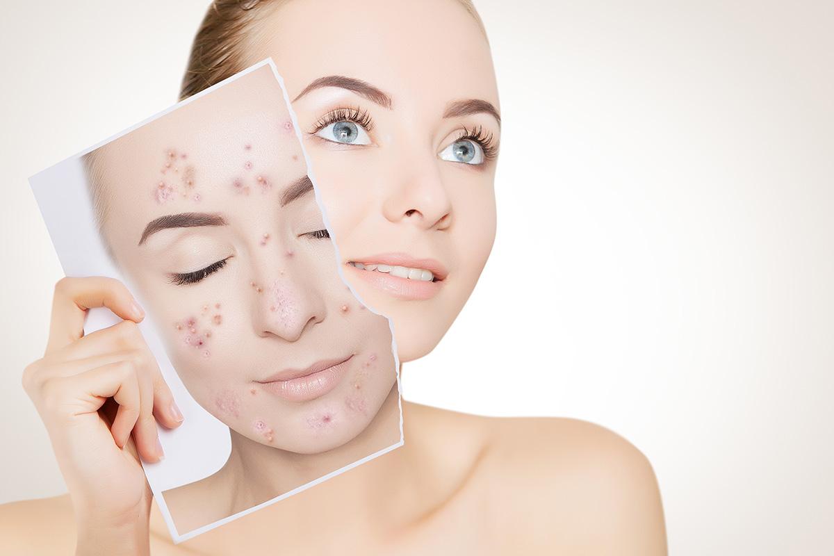 Laser Acne Treatment Apex Medical Spa