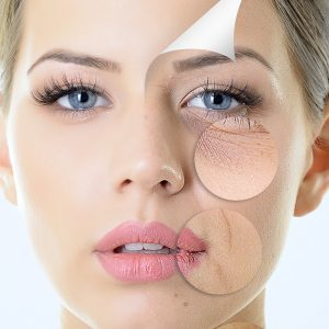 Fine lines and wrinkle reduction