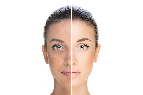 Laser Genesis Photo Facial Treatment