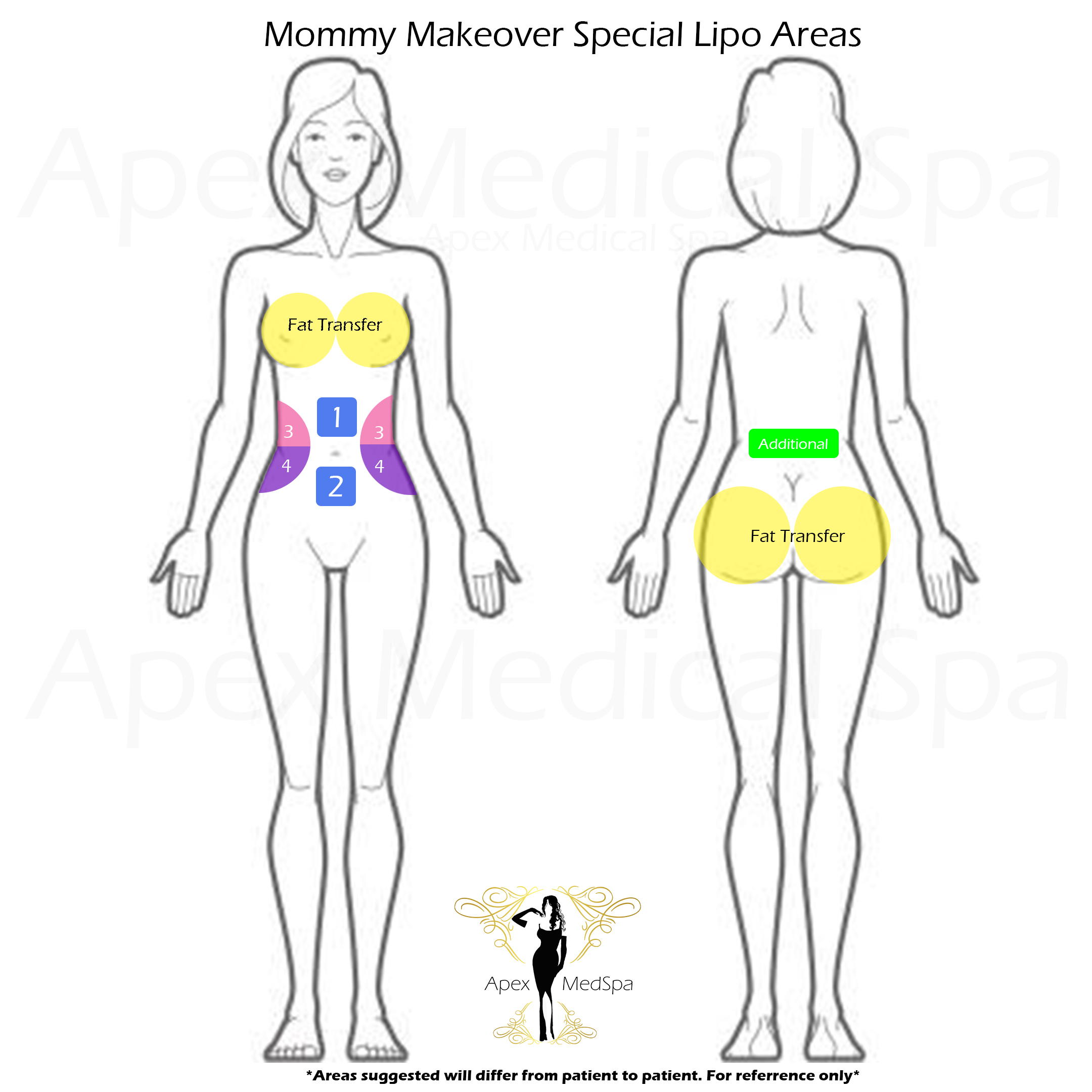 Suggested areas for Mommy Makeover Lipo